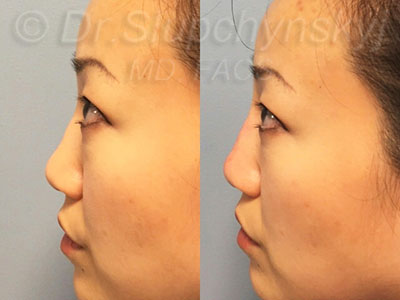 Asian Non-Surgical Rhinoplasty