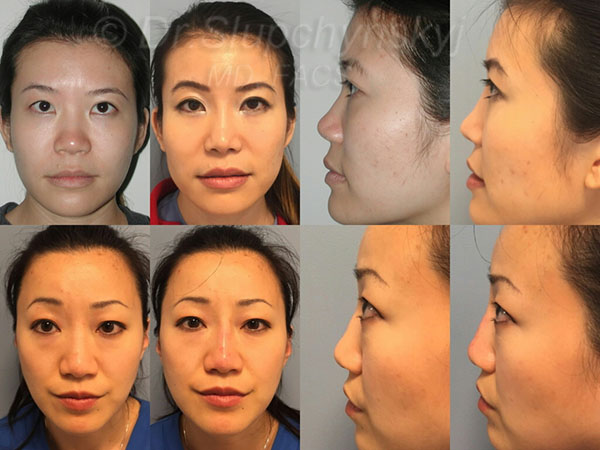 Asian Non-Surgical Rhinoplasty NJ