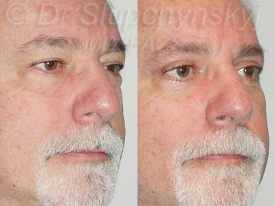 Male Upper and Lower Upper Blepharoplasty Patient