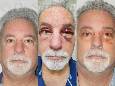 Male Upper and Lower Upper Blepharoplasty