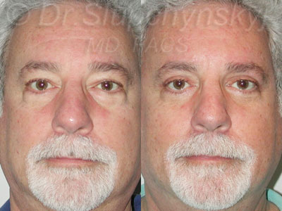 Male Upper and Lower Upper Blepharoplasty Patient NYC