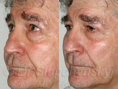 Male Lower Upper Blepharoplasty Patient