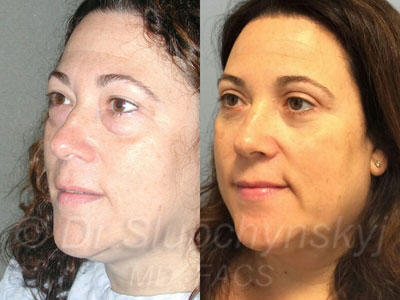 Female Lower Blepharoplasty Patient Manhattan