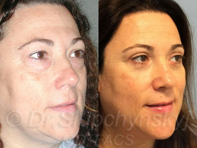 Female Lower Upper Blepharoplasty Patient