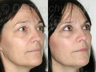 Female Upper Blepharoplasty Patient New York