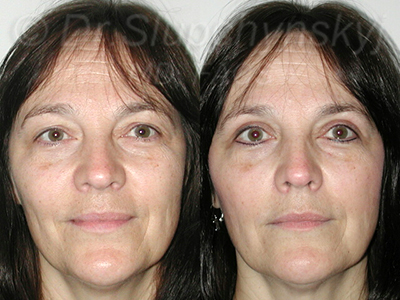 Female Upper Blepharoplasty Patient NYC