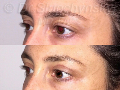 Female Upper Blepharoplasty Patient New York City