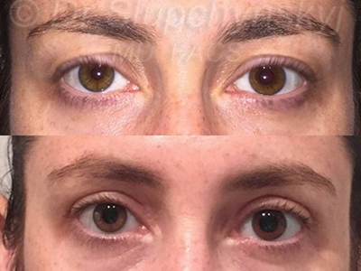 Female Upper Blepharoplasty Patient NY