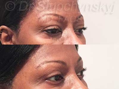 African-American Female Upper Blepharoplasty Patient NYC