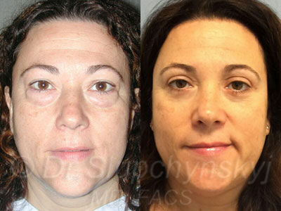 Female Upper and Lower Blepharoplasty Patient NYC
