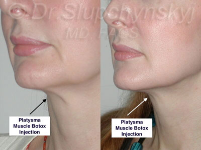 Botox Neck Band Treatment Manhattan
