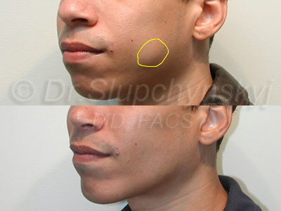 Buccal Fat Excision Surgeon