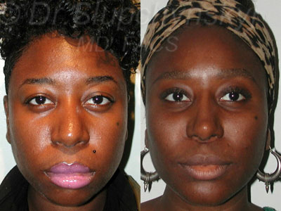 Cheek Augmentation and Revision Rhinoplasty