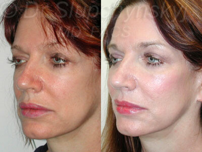 Cheek Augmentation Surgery NY
