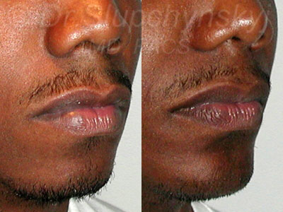 Chin Augmentation Surgery New York