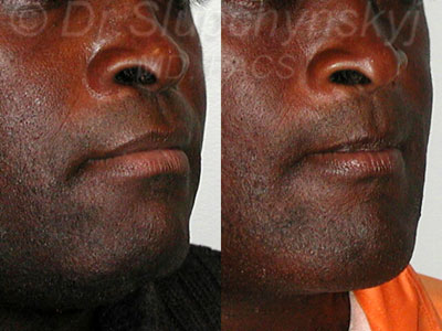 African-American Chin Augmentation