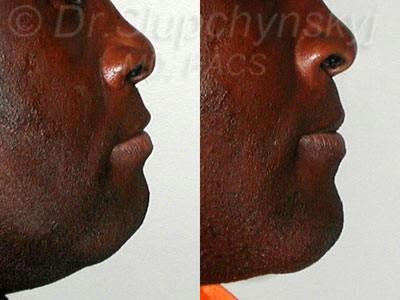 Ethnic Chin Augmentation procedure NY