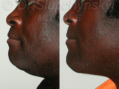 Chin Agumentation NYC