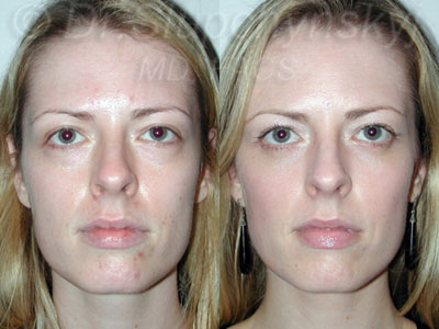 Lower Eyelid Lift Manhattan