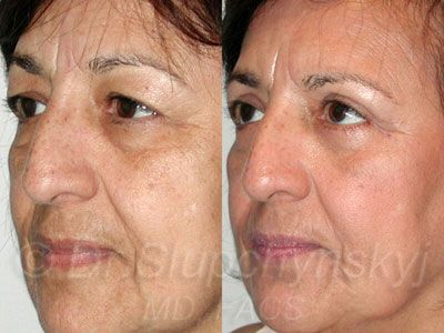 Female Lower Eyelid Lift