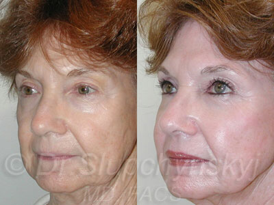 Upper and Lower Eyelid Lift NYC