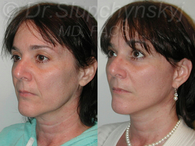 Minimally Invasive Facelift