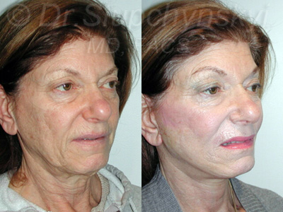 Minimally Invasive Facelift NYC