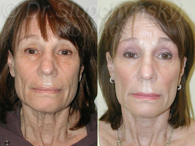Revision Facelift NYC