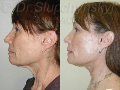 Revision Facelift Surgeon