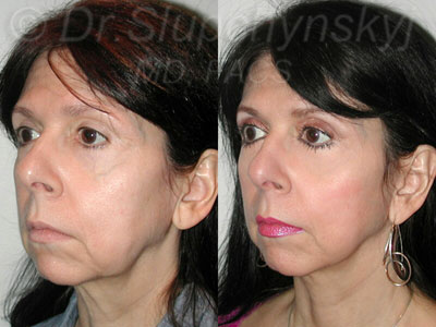 Minimally Invasive Facelift in Manhattan
