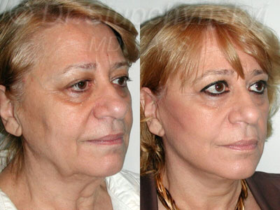 SLUPlift procedure NYC