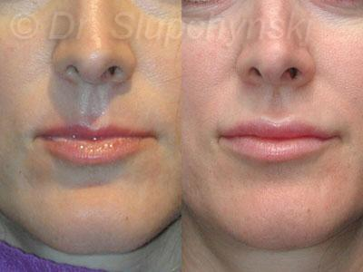 NYC Juvederm Treatment