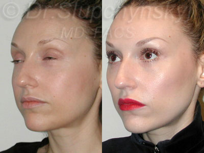 Non-Surgical Cheek Augmentation with Radiesse NY