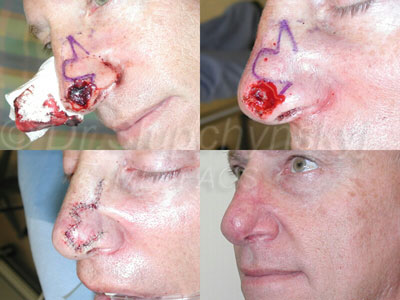 MOHS Excision and Nasal Reconstruction
