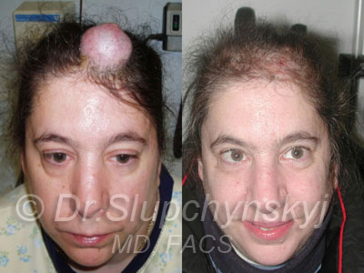 Skin Cancer reconstruction photo
