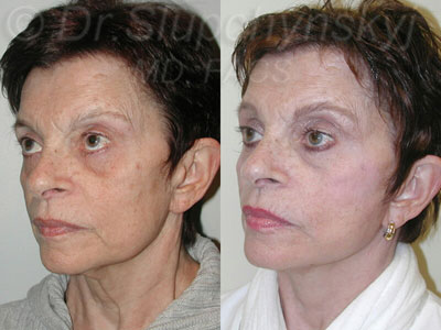 Revision Facelift Surgery NYC