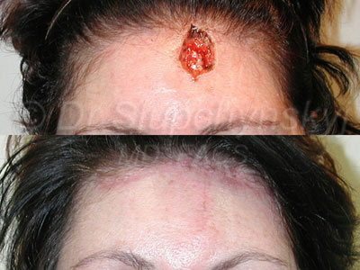 Mid-Forehead Basal Cell Carcinoma defect removal