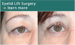 silikon lip augmentation surgical and non surgical new