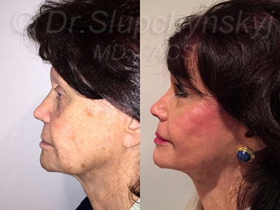 Minimally Invasive Facelift New York