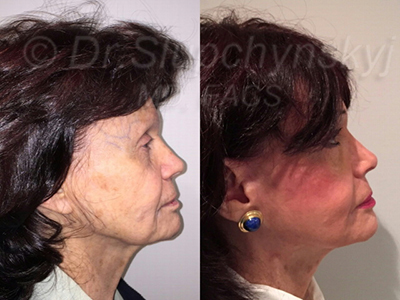 Minimally Invasive Facelift New Jersey