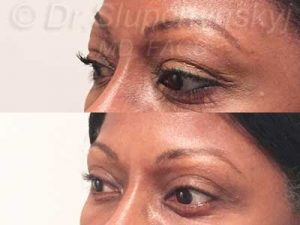 Female African-American Revision Eyelid Surgery