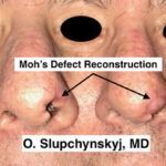 Nose Resonstuction NJ