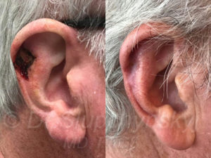 right ear Basal Cell Carcinoma