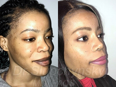 Female Cheek Augmentation New York