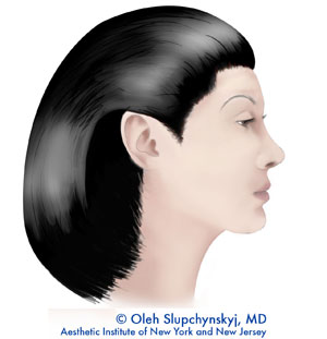 Mini facelift - A final result shows improvement in the jaw and neck line.