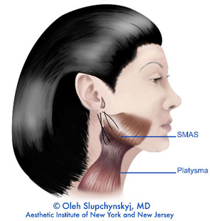 Mini facelift - The sutures are then tied close to the earlobe.