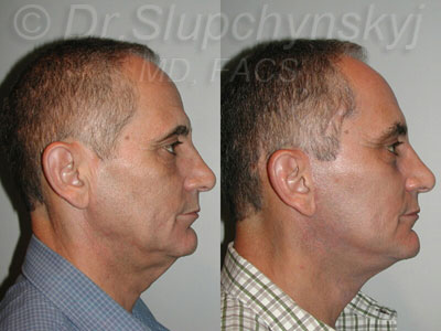 Male facelift - profile view - looking to the left