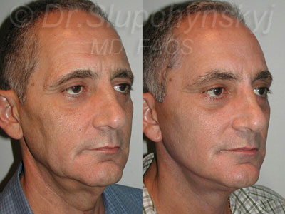 Male facelift - profile view - left side view