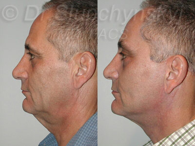 Male facelift - profile view