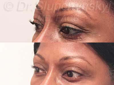 African American Revision Upper Blepharoplasty The
